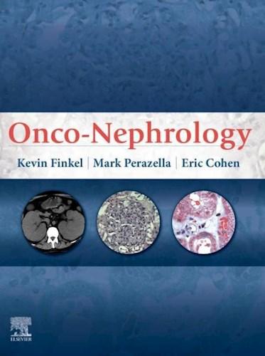 E-book Onco-Nephrology E-Book