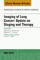 E-book Lung Cancer, An Issue Of Radiologic Clinics Of North America, E-Book
