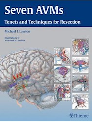 Papel Seven Avms: Tenets And Techniques For Resection