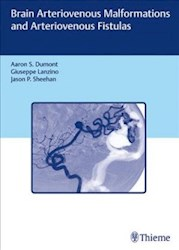 Papel Brain Arteriovenous Malformations And Arteriovenous Fistulas