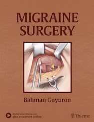 Papel Migraine Surgery