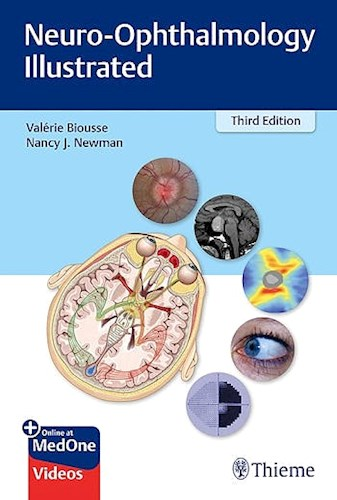 Papel Neuro-Ophthalmology Illustrated