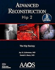 Papel Advanced Reconstruction: Hip 2