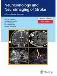 Papel Neurosonology And Neuroimaging Of Stroke: A Comprehensive Reference