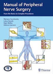 Papel Manual Of Peripheral Nerve Surgery