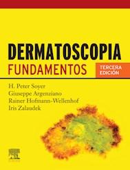 E-book Dermatoscopia