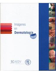 Papel Imágenes En Dermatología