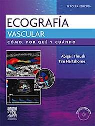 Papel Ecografía Vascular. Como, Por Qué Y Cuando
