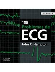 Papel 150 Problemas De Ecg