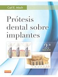 Papel Prótesis Dental Sobre Implantes