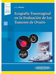 Papel Ecografía Transvaginal En La Evaluación De Los Tumores De Ovario