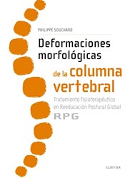 Papel Deformaciones Morfológicas De La Columna Vertebral :Tratamiento Fisioterapéutico En Reeducación Posg