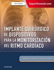 Papel+Digital Implante Quirúrgico De Dispositivos Para La Monitorización Del Ritmo Cardíaco