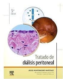 Papel Tratado de Diálisis Peritoneal Ed.3