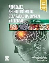 Papel Abordajes Neuroquirúrgicos De La Patología Craneal Y Cerebral Ed.2