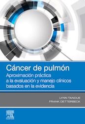 E-book Cáncer De Pulmón