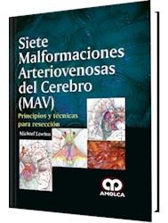 Papel Siete Malformaciones Arteriovenosas Del Cerebro (Mav) – Principios Y Técnicas Para Resección