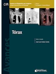 Papel Avances En Diagnóstico Por Imágenes: Tórax