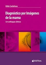 Papel Diagnóstico Por Imágenes De La Mama