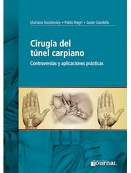 Papel Cirugía Del Túnel Carpiano