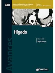 E-Book Avances En Diagnóstico Por Imágenes: Hígado E-Book