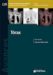 E-Book Avances En Diagnóstico Por Imágenes: Tórax  E-Book