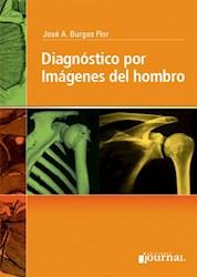E-Book Diagnóstico Por Imágenes Del Hombro  E-Book