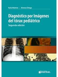 E-Book Diagnóstico Por Imagenes Del Tórax Pediátrico - 2ª Ed.  E-Book