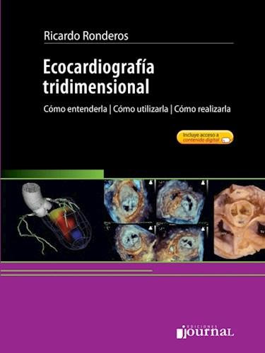 E-Book Ecocardiografía Tridimensional (eBook)
