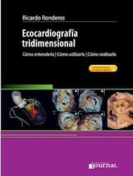 E-Book Ecocardiografía Tridimensional (Ebook)