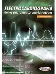 Papel Electrocardiografía De Los Síndromes Coronarios Agudos