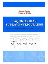Papel Taquicardias Supraventriculares, Mecanismos,Diagnostico Y Tratamiento Por Cateterismo