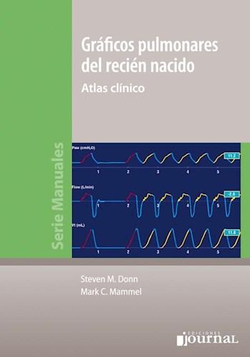Papel Gráficos pulmonares del recién nacido