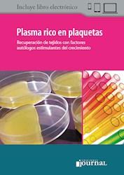 Papel Plasma Rico En Plaquetas