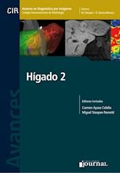 E-Book Avances En Diagnóstico Por Imágenes: Hígado 2 (E-Book)