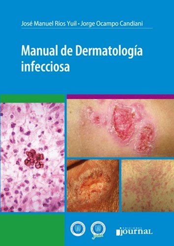 E-Book Manual de Dermatología infecciosa (E-Book)