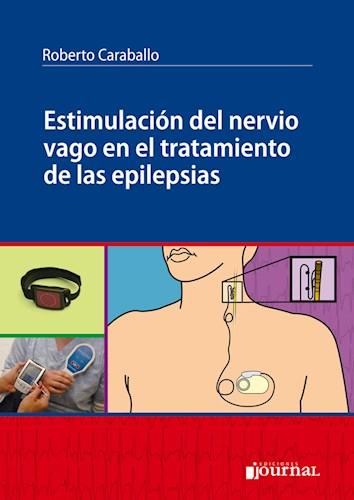 Papel Estimulación del nervio vago en el tratamiento de las epilepsias