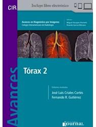 E-Book Avances En Diagnóstico Por Imágenes: Tórax 2 (E-Book)
