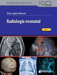 E-Book Radiología Neonatal (Ebook)