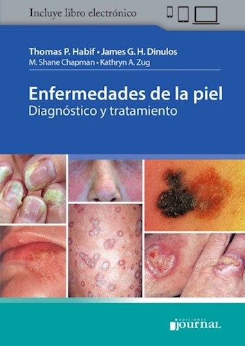 E-Book Enfermedades de la piel (eBook)