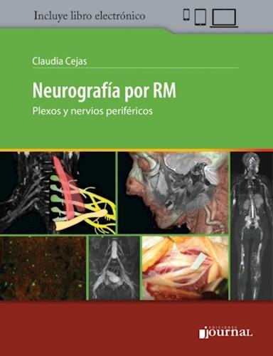 E-Book Neurografía por RM (E-Book)