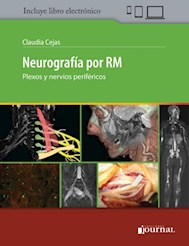 E-Book Neurografía Por Rm (E-Book)