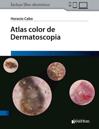 E-Book Atlas color de Dermatoscopia (E-Book)