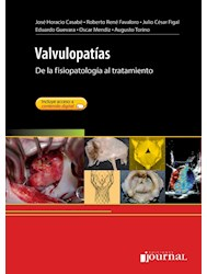 E-Book Valvulopatías (Ebook)