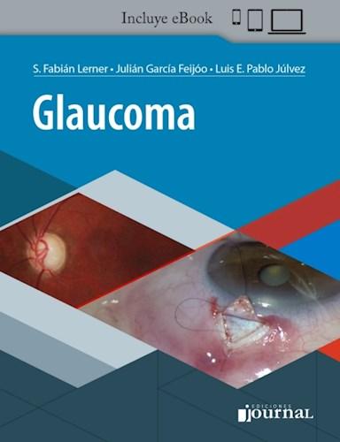 E-Book Glaucoma (eBook)