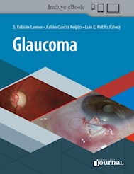 E-Book Glaucoma (Ebook)