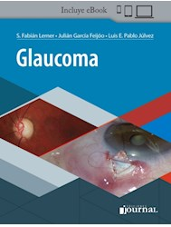 E-Book Glaucoma (E-Book)