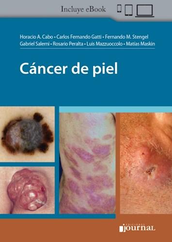 E-Book Cáncer de piel (eBook)