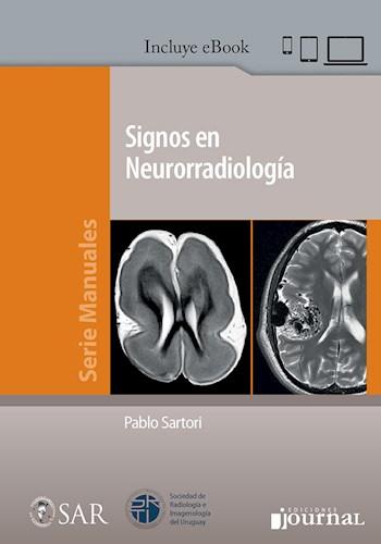 E-Book Signos en Neurorradiología (eBook)