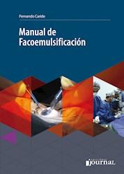 E-Book Manual De Facoemulsificación (Ebook)